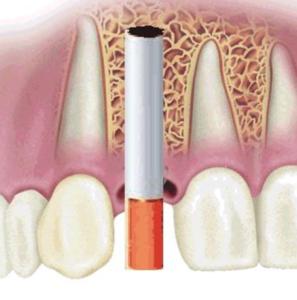 иимплантация зубов при курении
